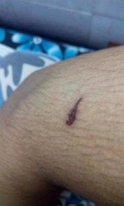oligochaete burn