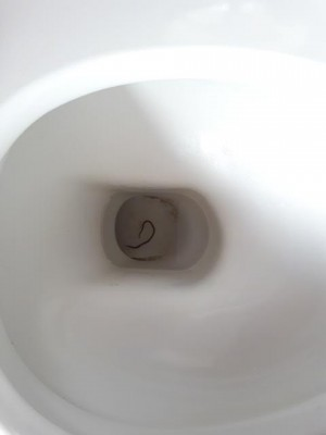 Common Worms in Toilets That Aren't Parasitic