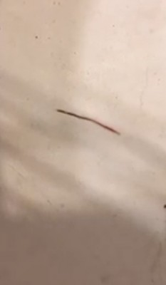 Worm in Sink is a Bloodworm