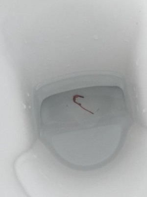 Is Worm in Toilet an Earthworm?