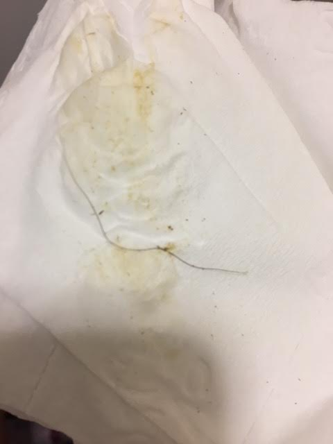 worm in toilet might be parasitic all about worms