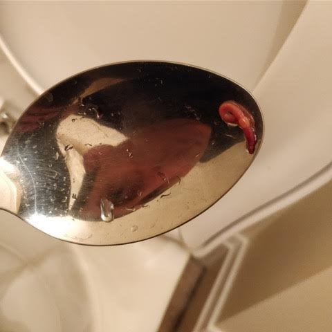 Small Red Worm in Toilet Likely an Earthworm