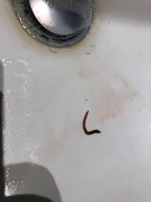 Worm in Toilet Bowl is Not Parasitic