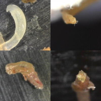 Lyme Disease Patient with Potential Parasites