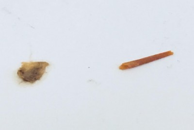 Are Worms Found In Shower Tapeworms, Flea Larvae, or Something Else?