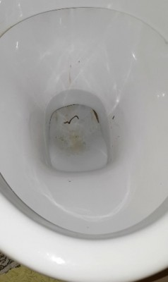 Is Worm in Toilet Roundworm?