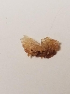Larva and Eggs of Various Colors Found All Over Pennsylvania Home