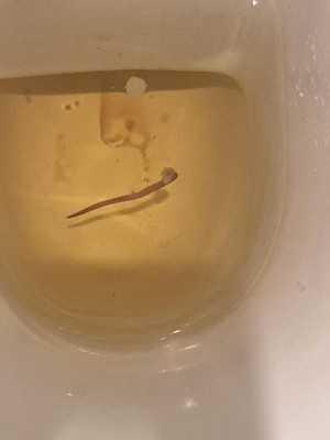 Pink Worm in Toilet is an Earthworm