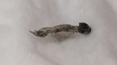 Gray-black Bug That Came Off Skin May be a Flea Larva