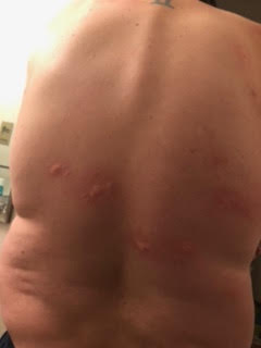 Man Suspects Parasites After Getting Lumps on his Back; Where to Go for Help
