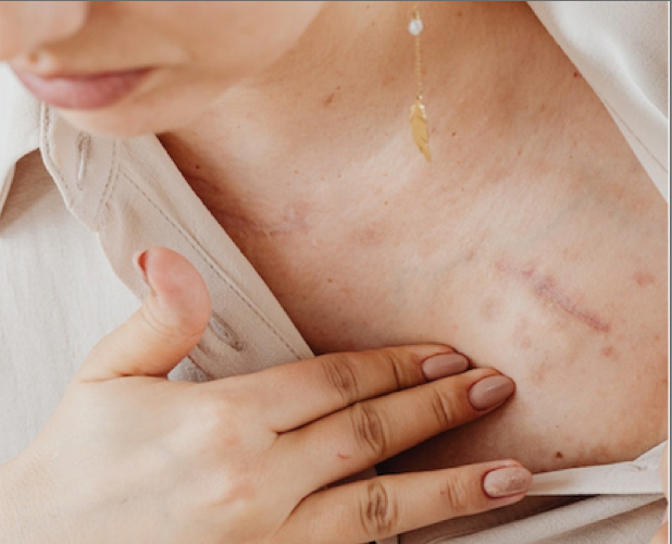 woman skin scarred damaged parasites in humans