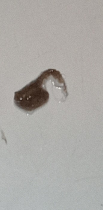 Bunches of Hair-like Organisms Found in Sink by Woman Seeking Answers