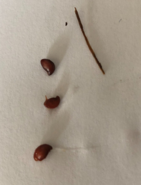 Red Sesame Seed-like Objects Found in Stool by Woman Seeking Answers